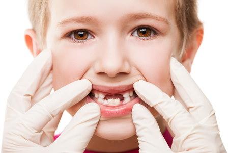 erupcion de los dientes definitivos