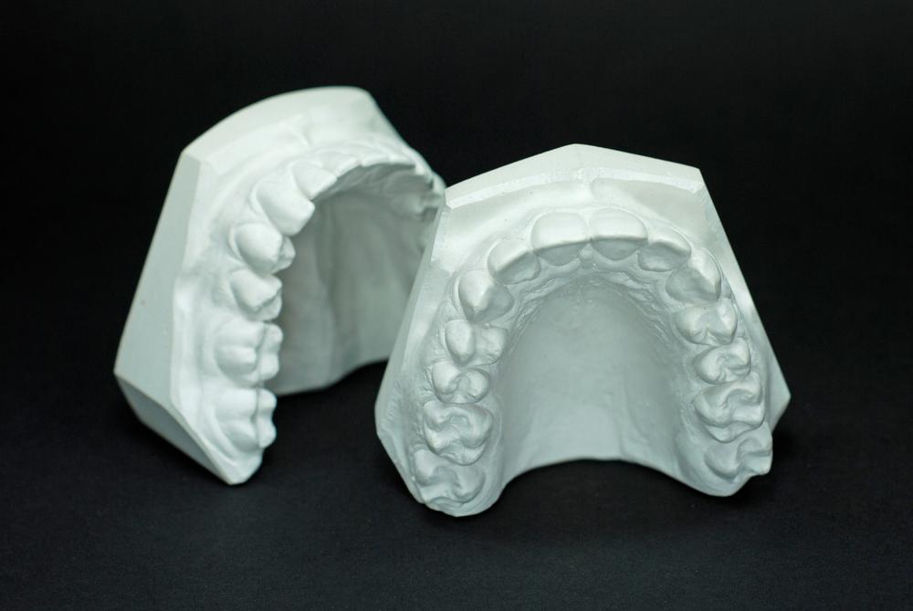 Modelos ortodoncia