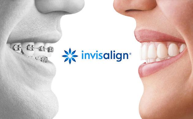 ortodoncia de adultos invisalign