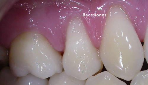 Imagen de dientes superiores con recesión de la encía