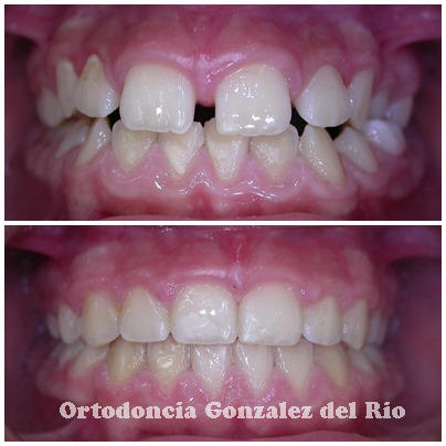 Diastema dental ,antes y despues