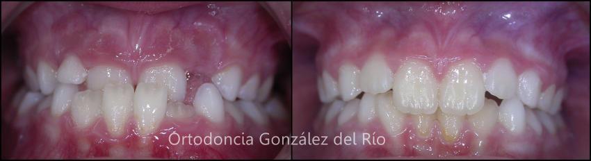 retencion ortodoncica
