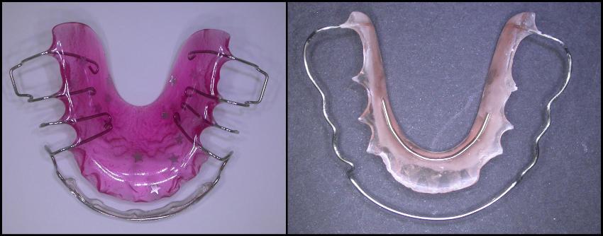 placas de retencion ortodoncica