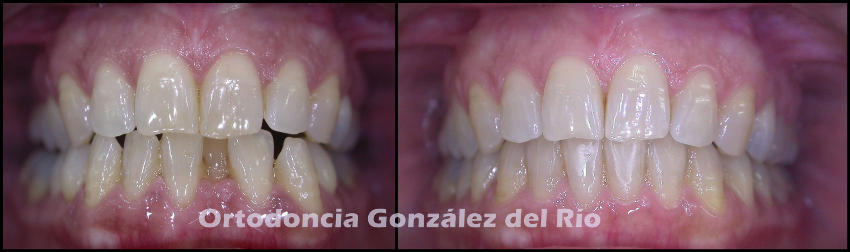 Apiñamiento dental inferior