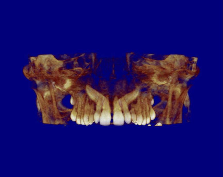 caninos incluidos apiñamiento dental
