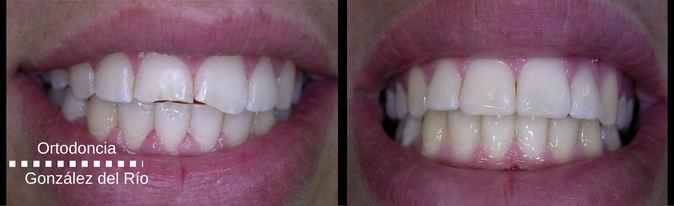 fractura dental,sonrisa espectacular