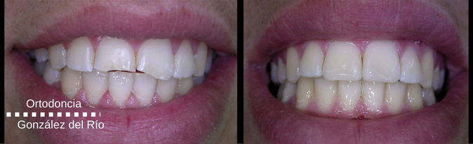 fractura dental,sonrisa espectacular