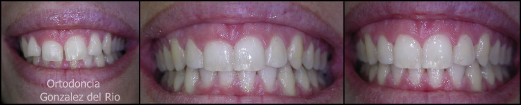 sonrisa espectacular y margen gingival