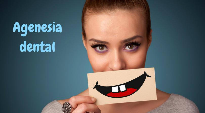 agenesia dental en niños causa 3