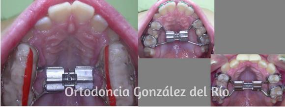 rinitis alergica y ortodoncia,disyuntores