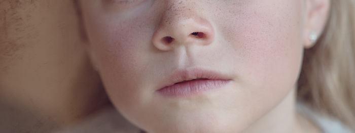 rinitis alergica y ortodoncia ,funciones de la nariz