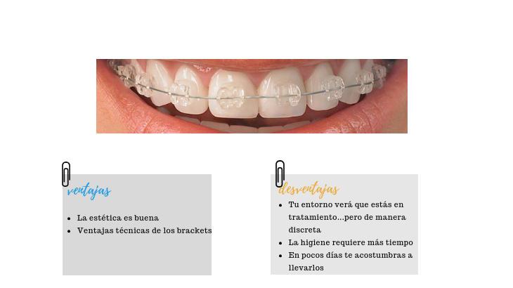 brackets esteticos ortodoncia adultos marbella