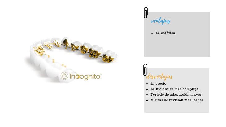 ortodoncia lingual aparato de ortodoncia de adultos en marbella
