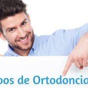 tipos de ortodoncia de adultos en Marbella