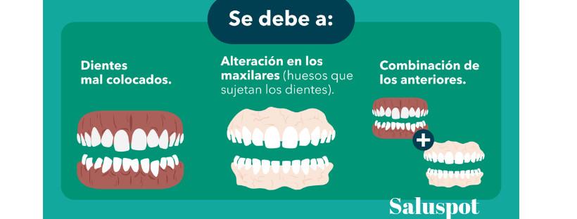 tipos de maloclusiones y duracion de la ortodoncia