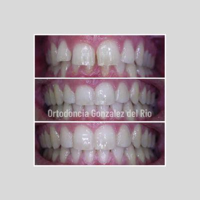 diastema-dental-tratamiento-ortodoncico